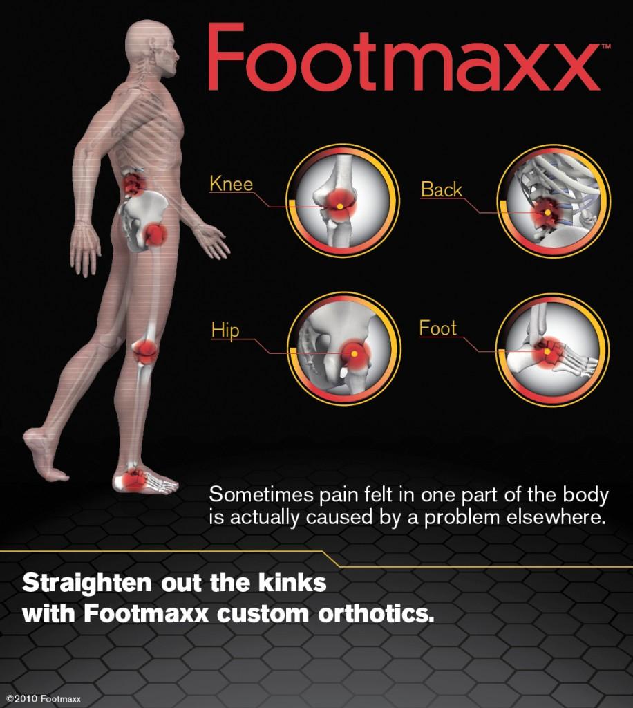 Footmaxx custom orthortics